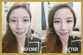 Eyebrow Embroidery - Korea combo eyebrow 2
