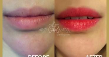Lips enhancement